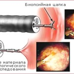 Что такое биопсия горла и как она проводится ?