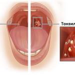 Симптомы и лечение острой формы тонзиллита (ангины)