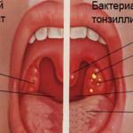 Что такое бактериальный тонзиллит и как он лечится?