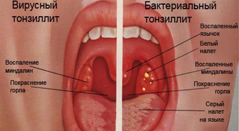 Заболевание бактериальный тонзиллит