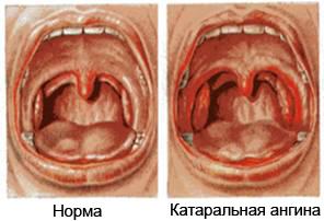 Нормальное и больное горло